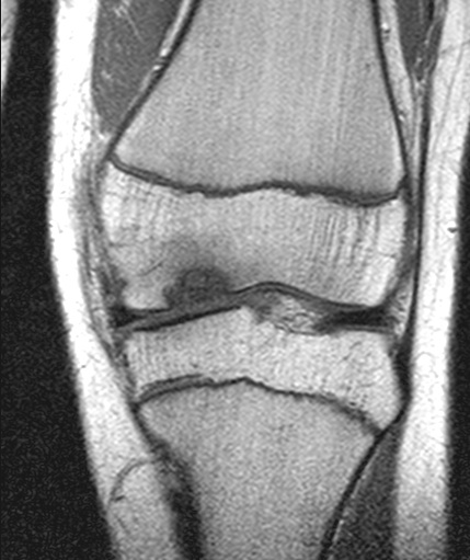 Osteochondrosis dissecans