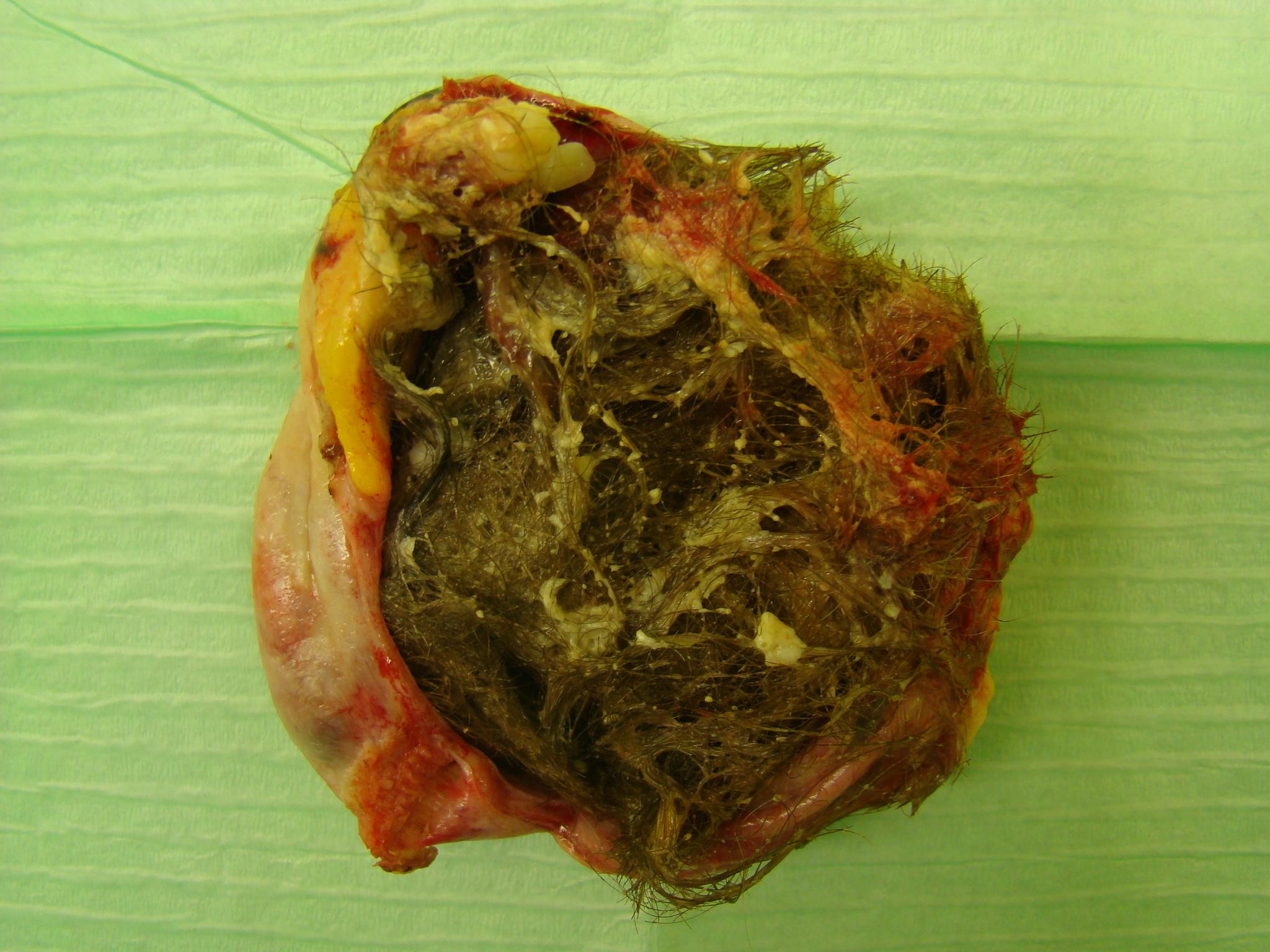 Cyst teratoma ovarian