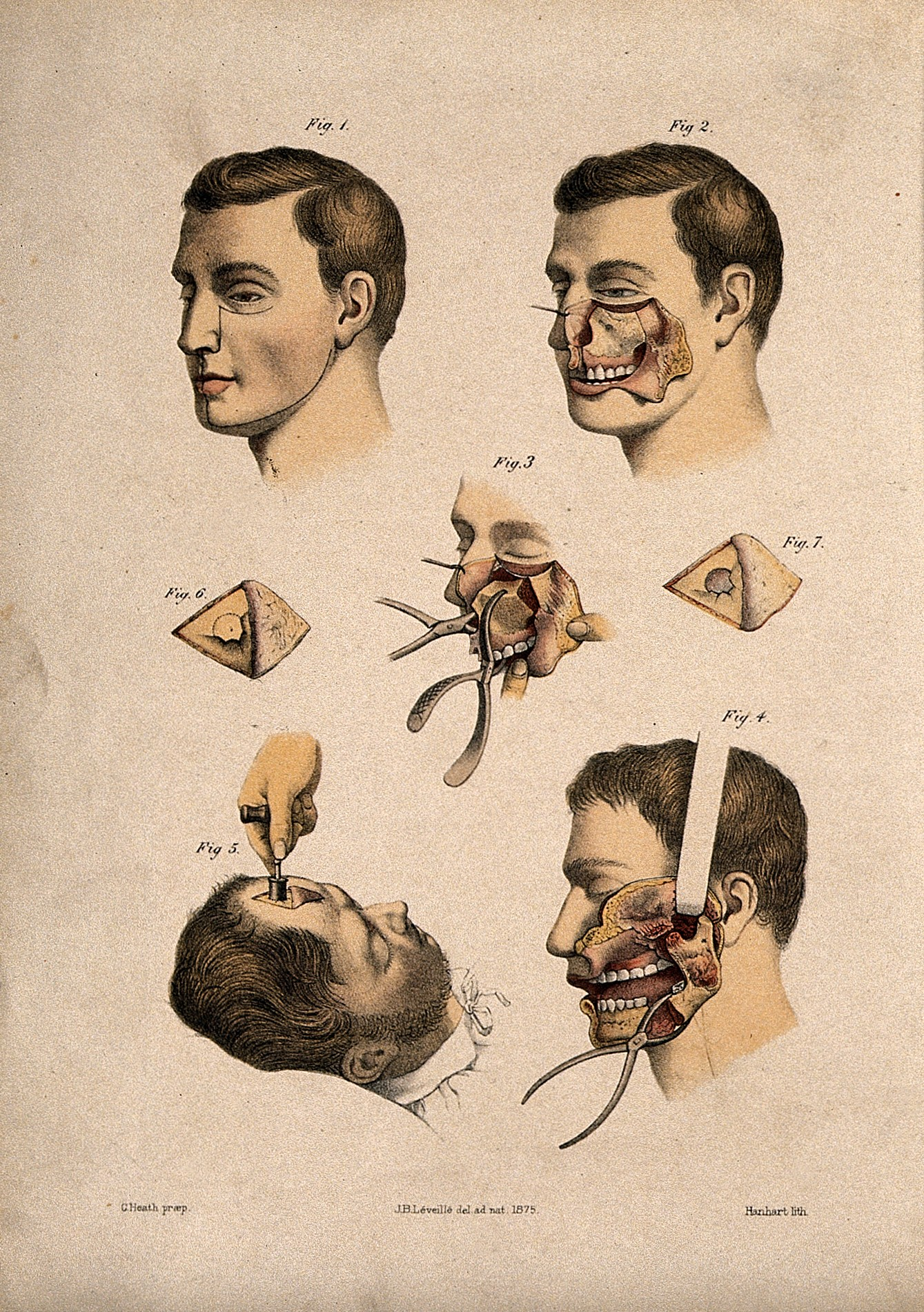 File:Diagrams illustrating cross-sections through the human face ...