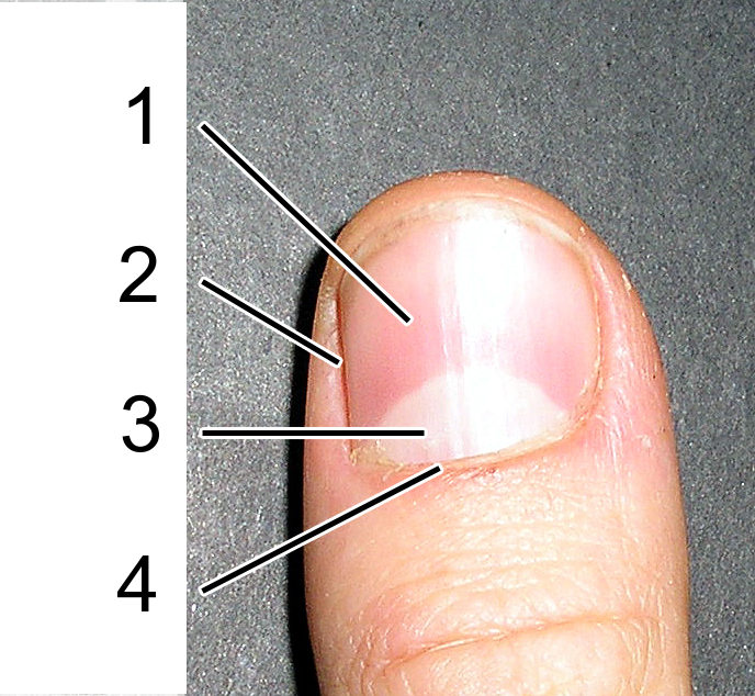 Common Nail Problems: Conditions, Treatments ... - skinsight