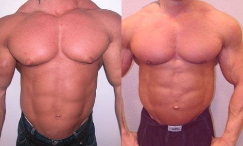 File:Gynecomastia in Bodybuilder.jpg