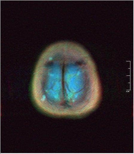 Brain MRI 0198 00.jpg
