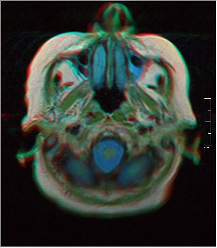 Brain MRI 0198 19.jpg