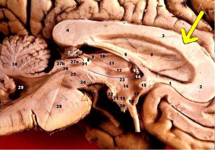 File:Human brain left midsagitttal view closeup description 2 ...