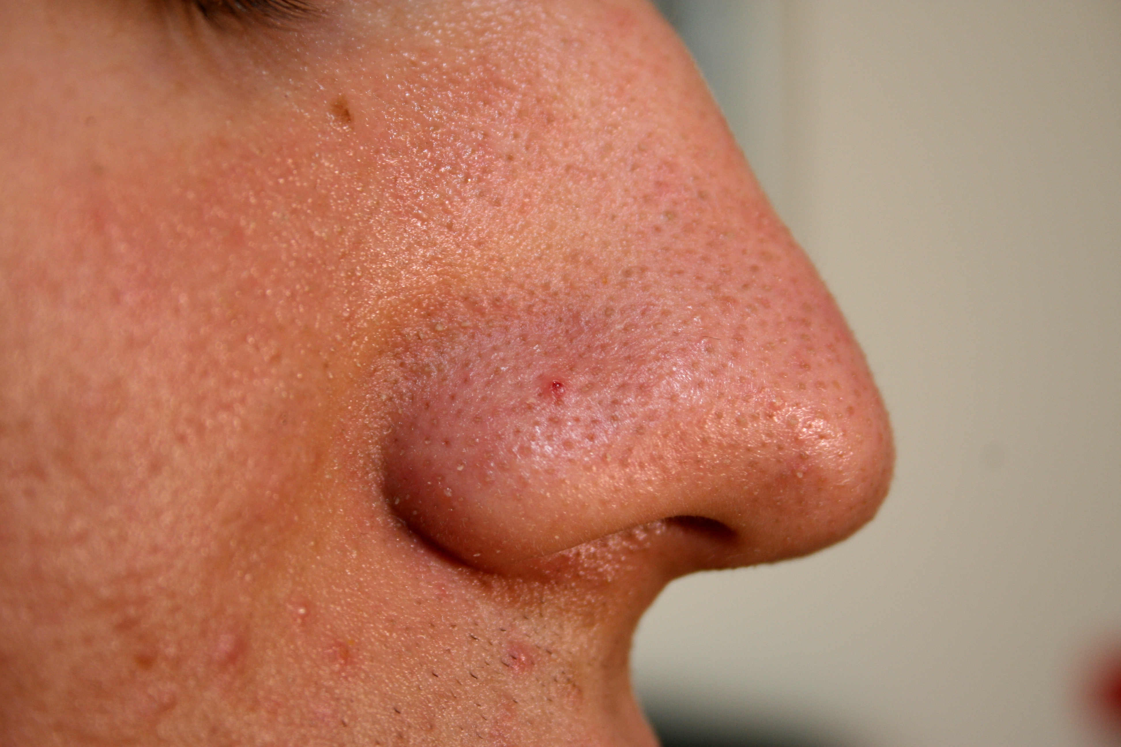 large pores on nose - photo #46
