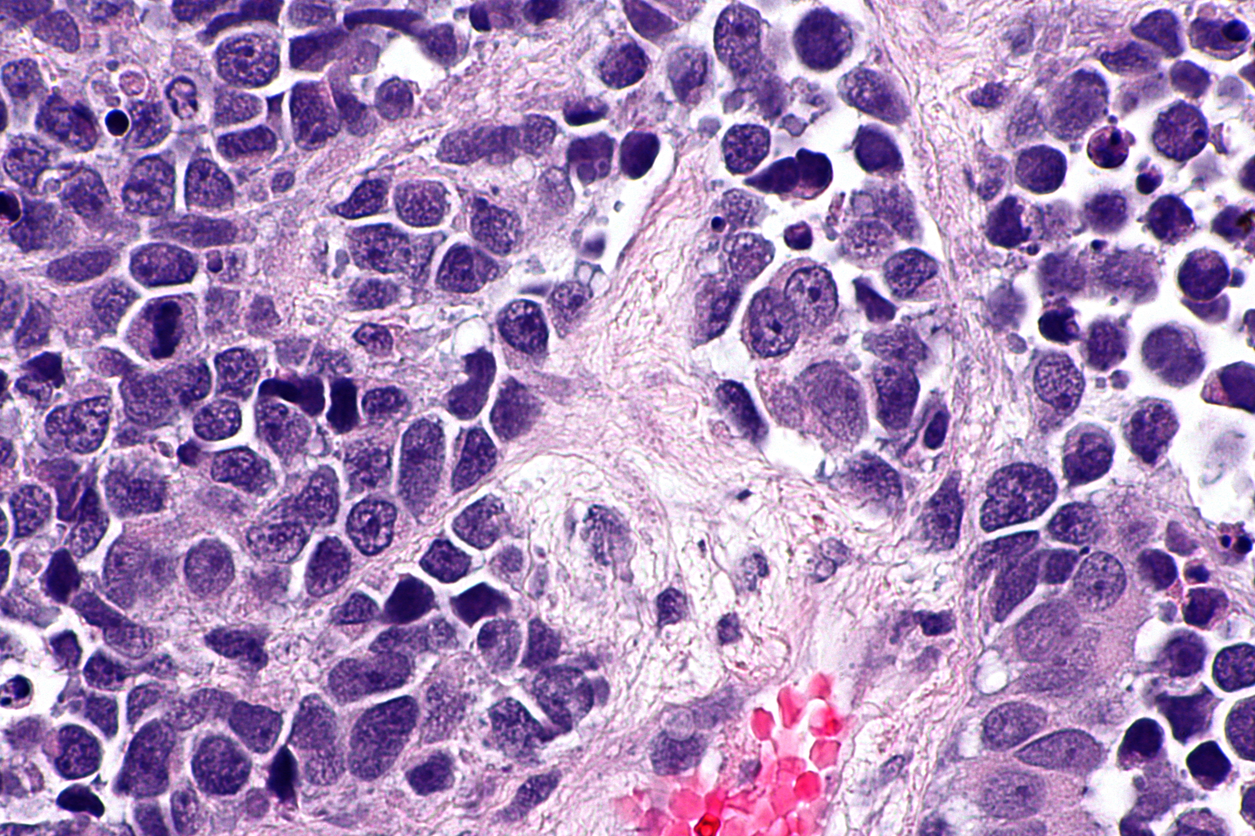 smoking and urinary bladder carcinoma Studies of urothelial bladder cancer have identified multiple risk factors, the most  important of which are cigarette smoking and various.