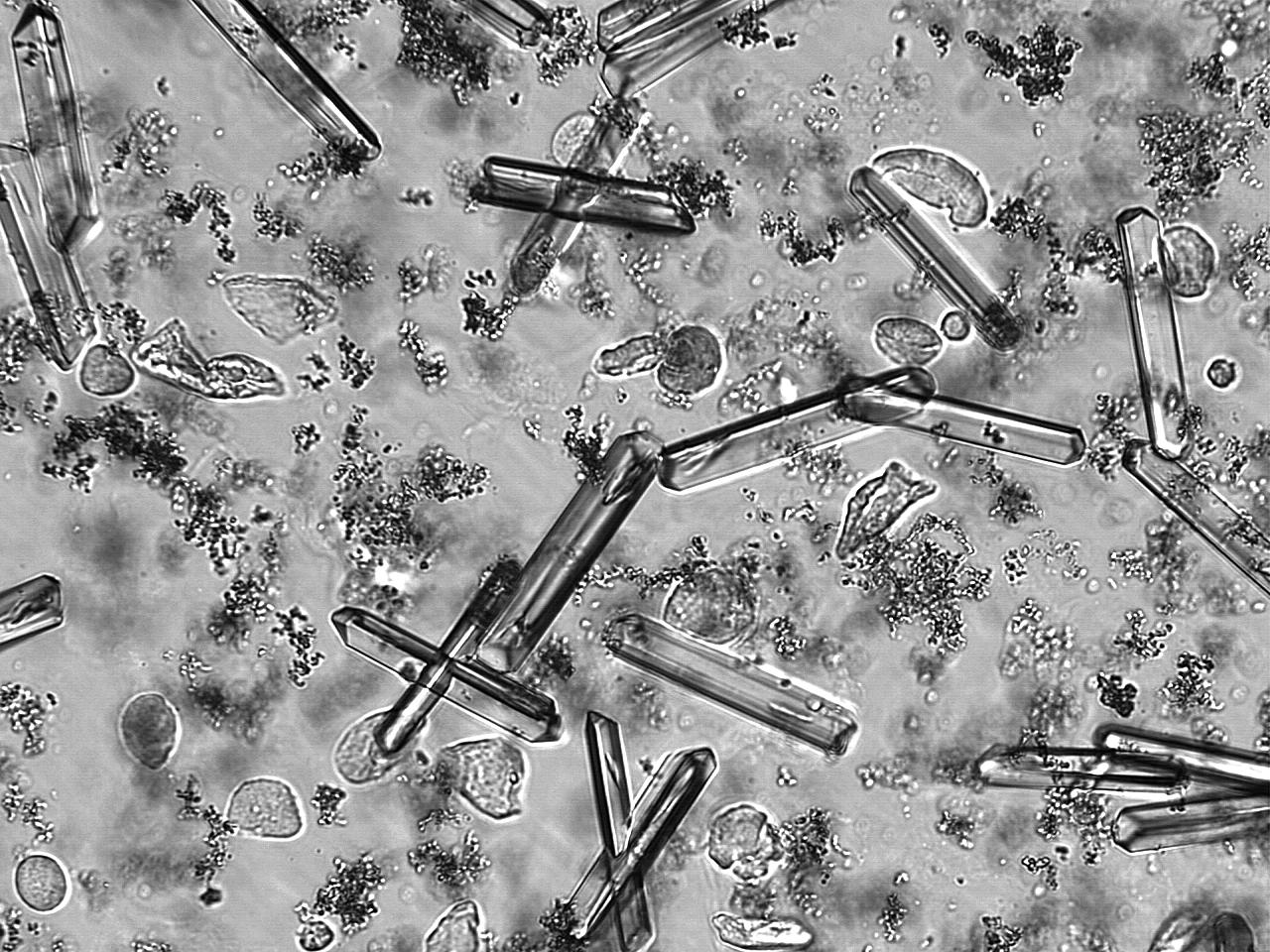 Struvite Crystals Microscope File:struvite Crystals Urine