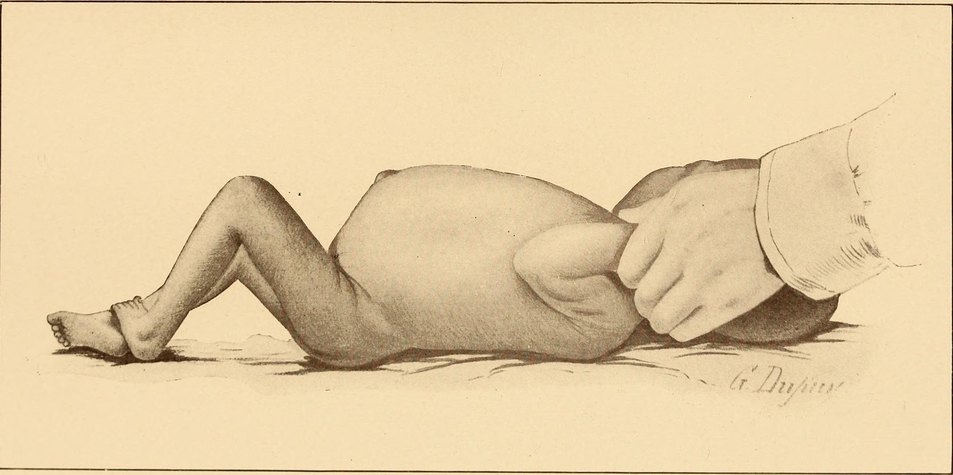 Météorisme — Wikipédia