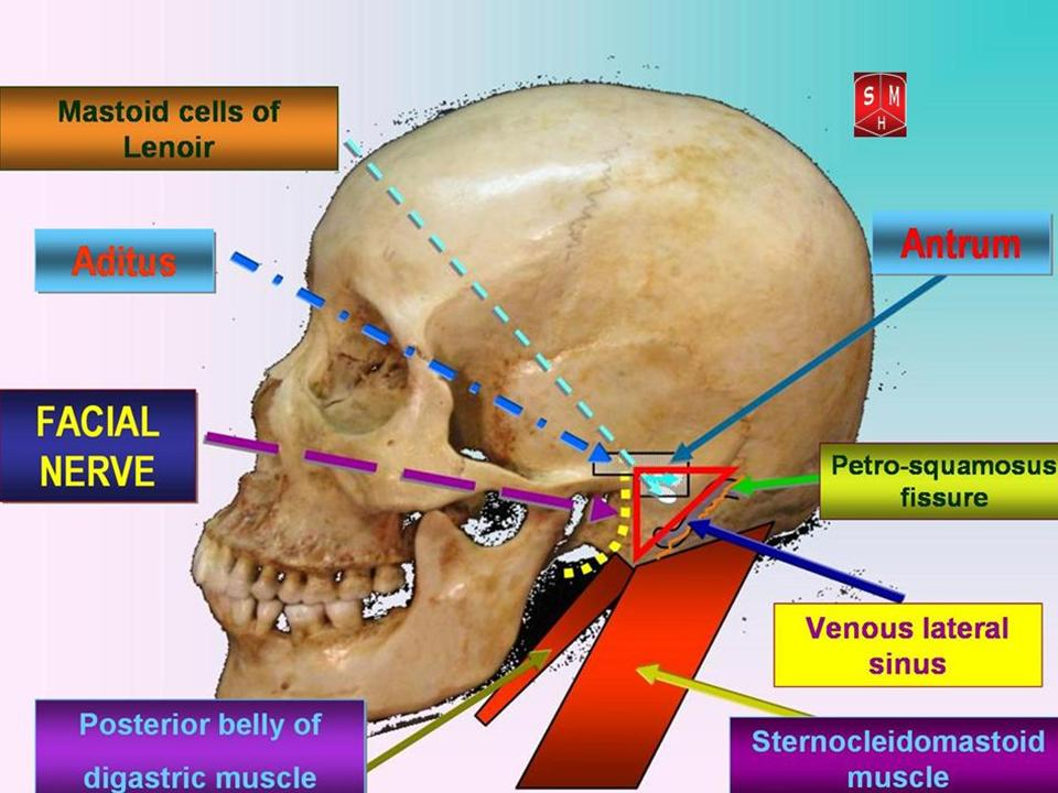 I Am Experiencing pain Around My facial nerve Bone area? - Health - Nigeria
