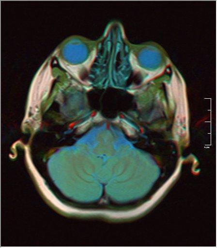 Brain MRI 0035 16 t1 pd t2 41f.jpg