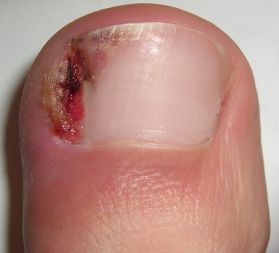 Ingrown Nail Wikipedia
