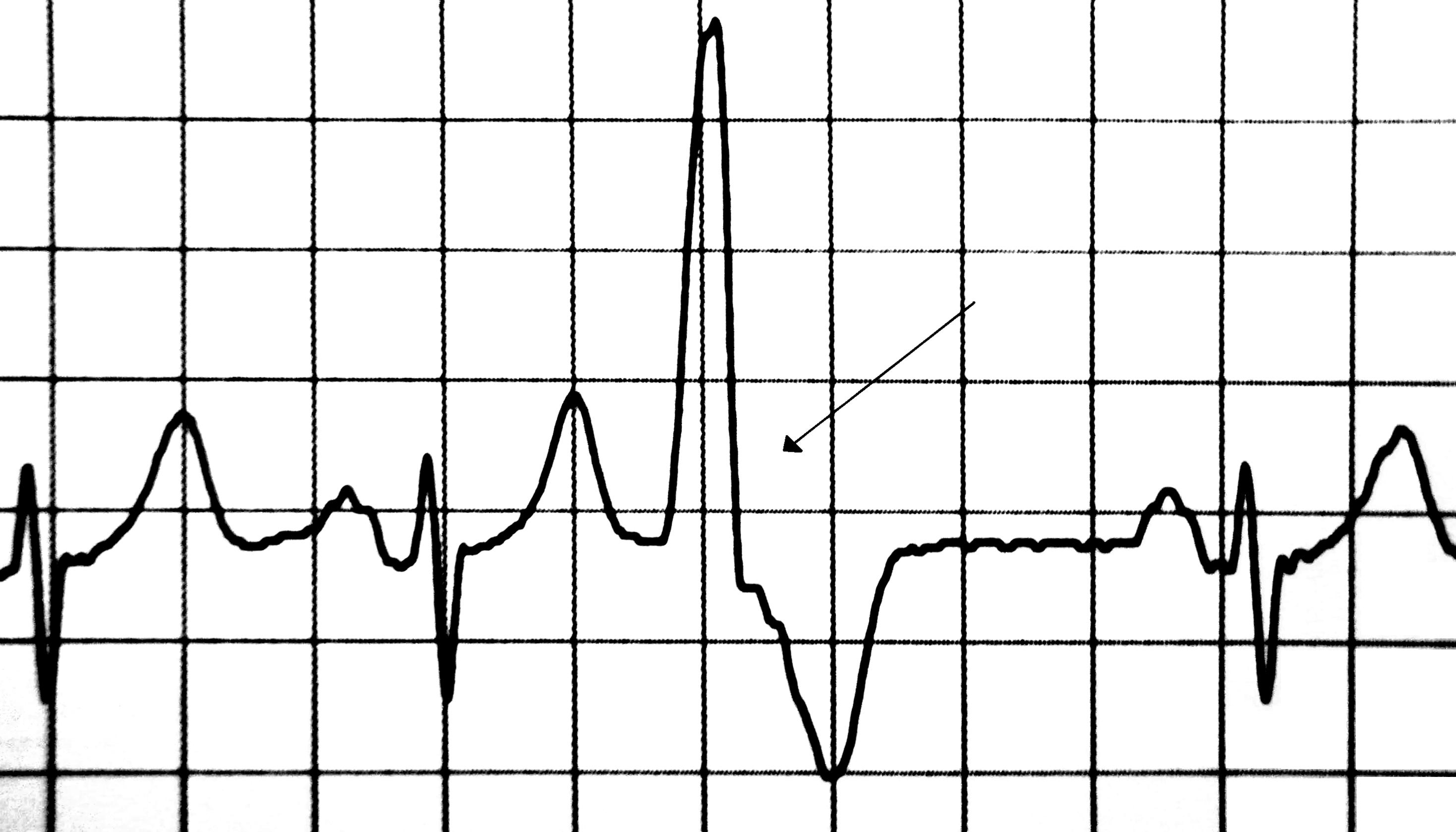 Premature ventricular contraction - Wikipedia