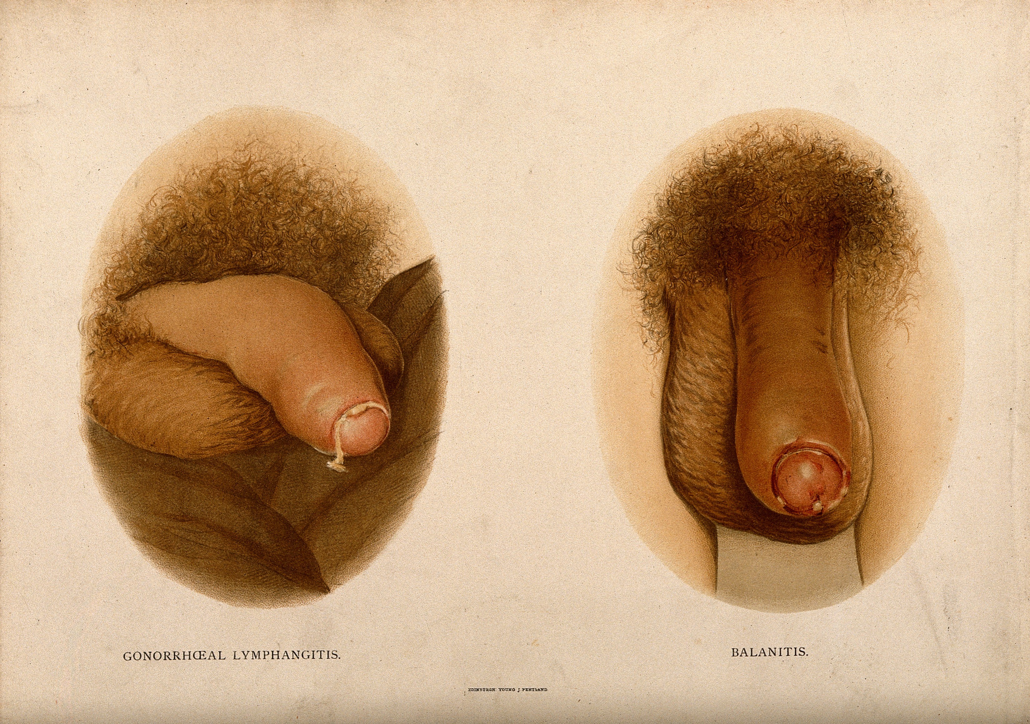 Normal Human Penis