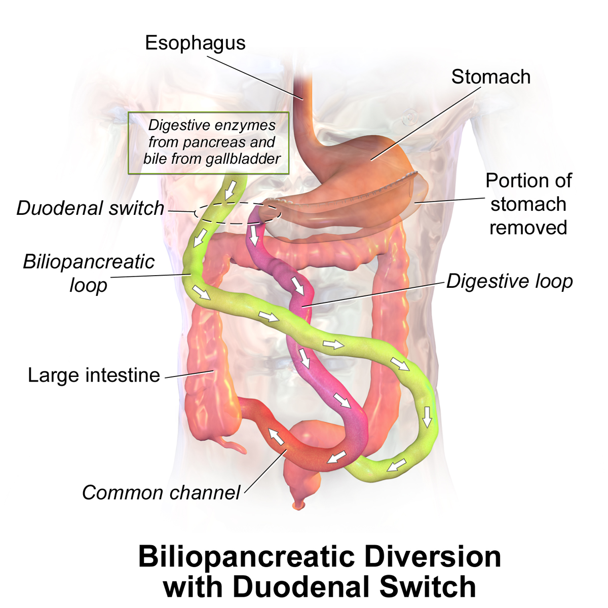Bariatric Surgery Wikipedia
