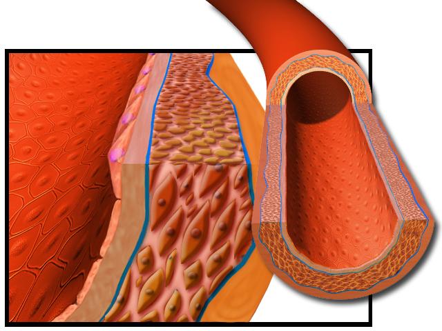 Blausen 0051 Artery.png