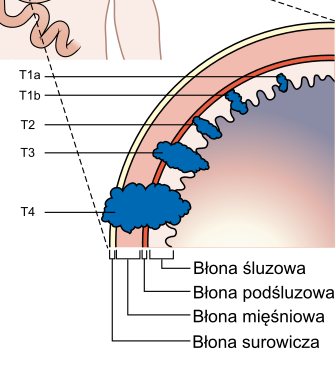 Diagram_showing_the_T_stages_of_stomach_cancer_CRUK_374_pl.png