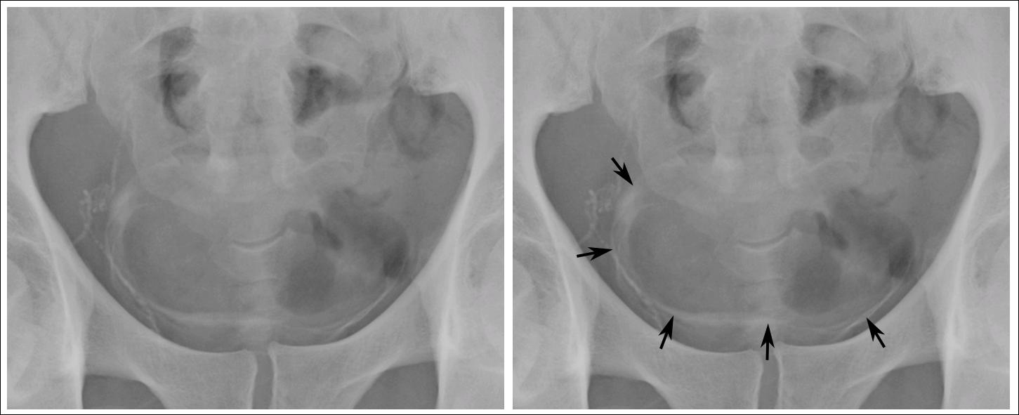 Cancer de vezică urinară - Schistosomiasis bladder x ray
