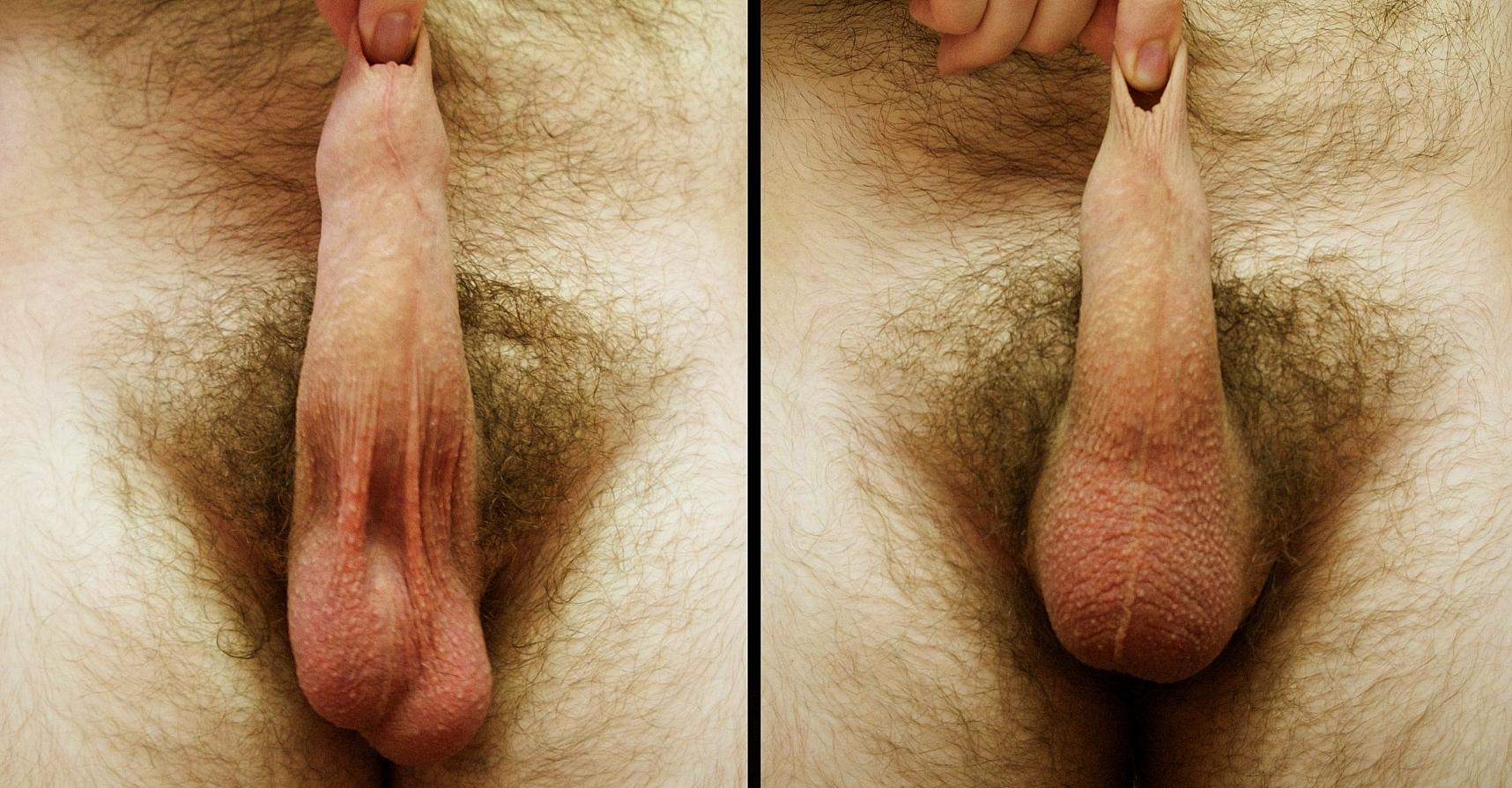 Фото пениса без яичек, Мужчины без яиц: kissmyabs 23 фотография