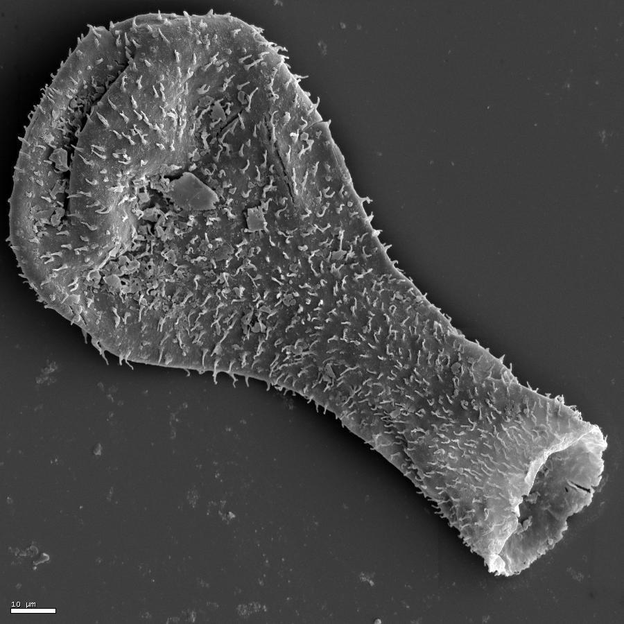 Whole chitinozoan.jpg