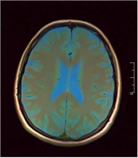 Brain MRI 0076 07.jpg