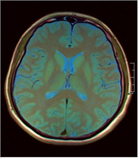 Brain MRI 0081 09.jpg
