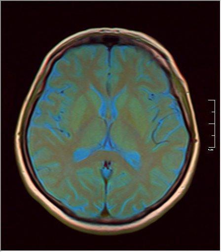 Brain MRI 0213 09.jpg