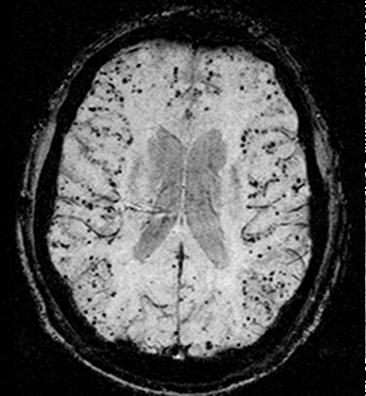 Amyloidiangiopatia