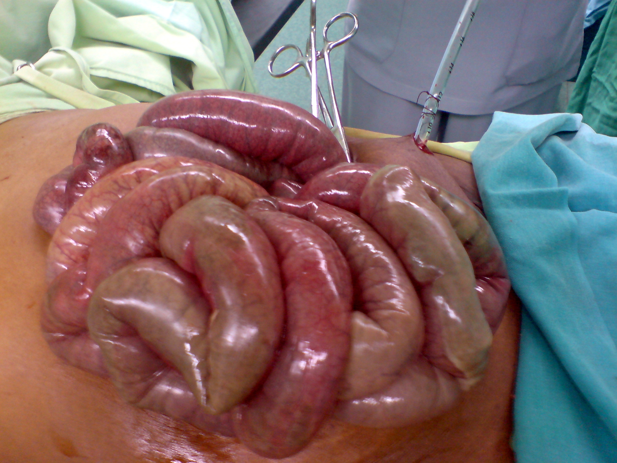 pathology outlines - infarct