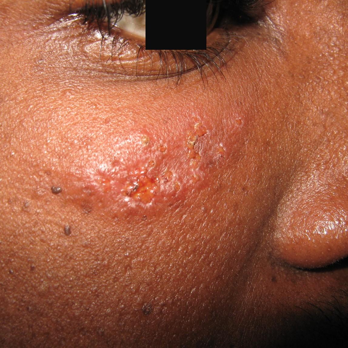 herpes joue