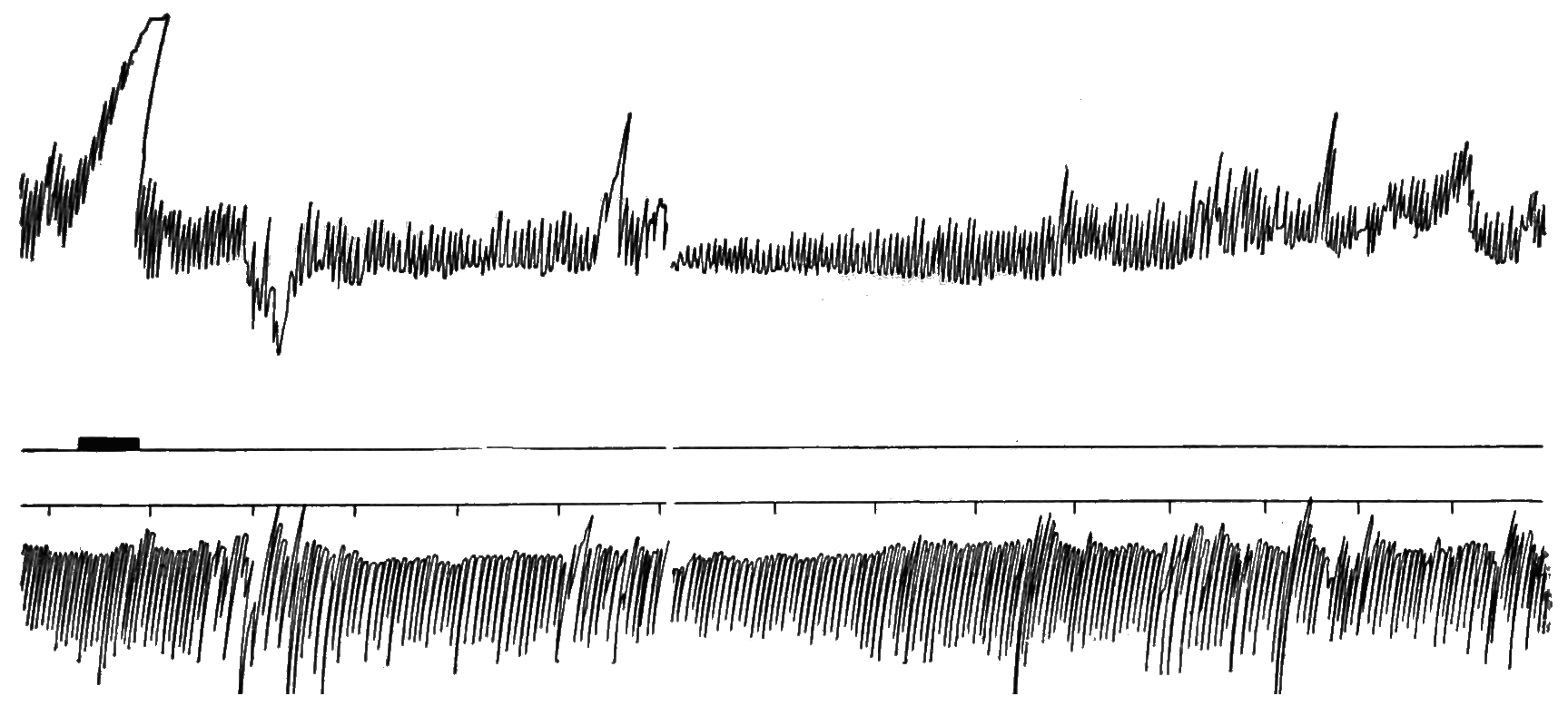 PSM V81 D311 Intragastric oscillations of hunger recorded by a pneumograph.png