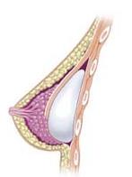 1 English - Breast after subglandular augmenta...