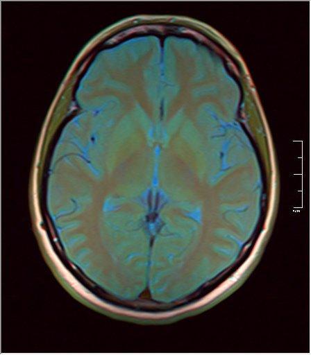 Brain MRI 0053 10.jpg