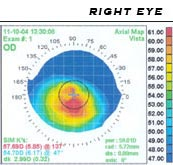 Corneal topogram of a keratoconic eye