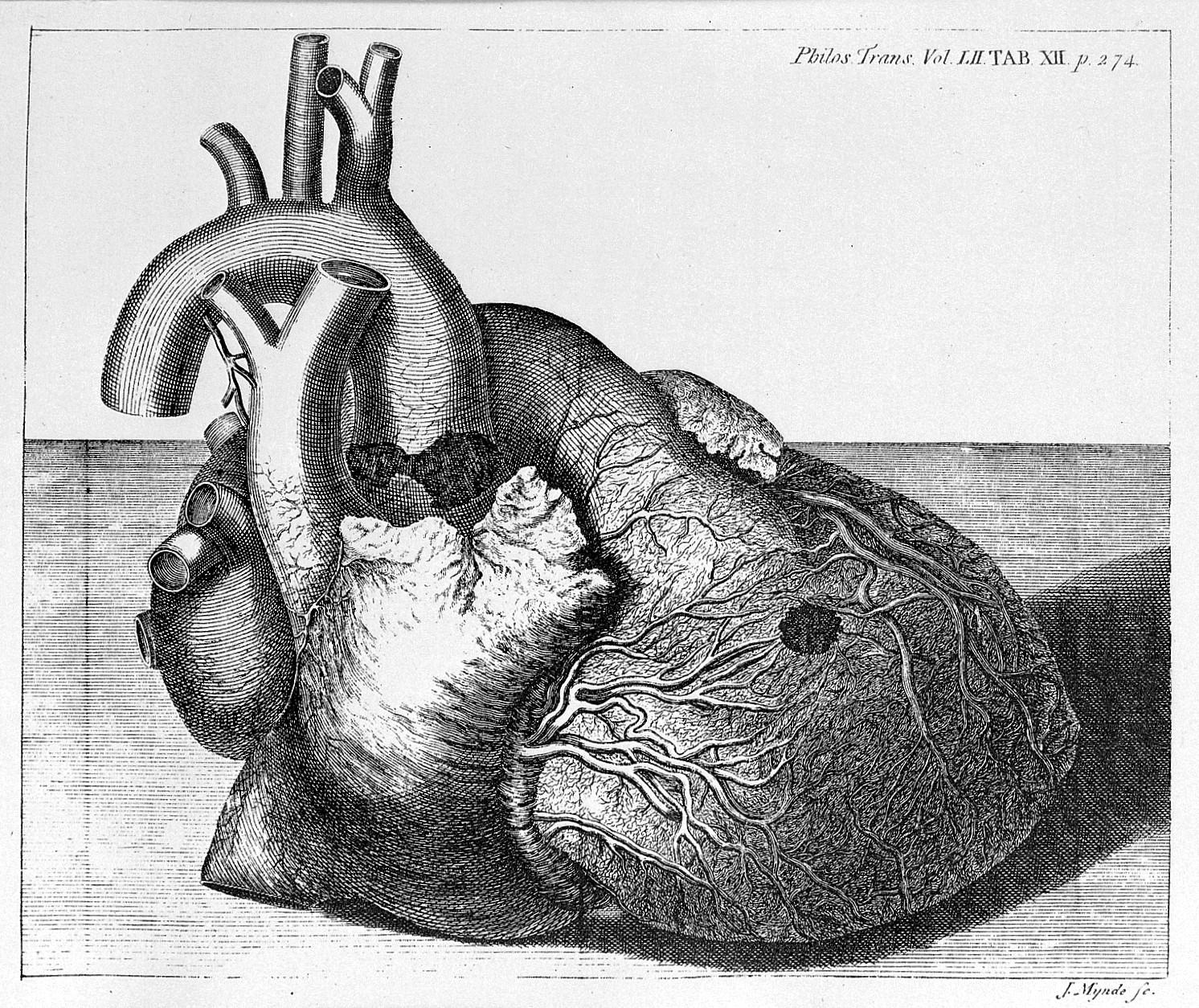 File:Engraving of damaged heart of George II, 1761 Wellcome L0005831.jpg