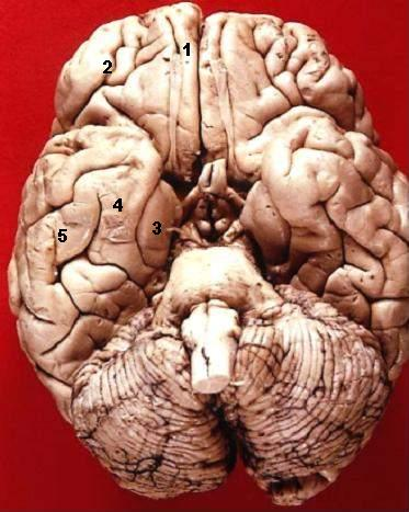 Filehuman brain inferior view description 2g wikimedia commons filehuman brain inferior view description 2g ccuart
