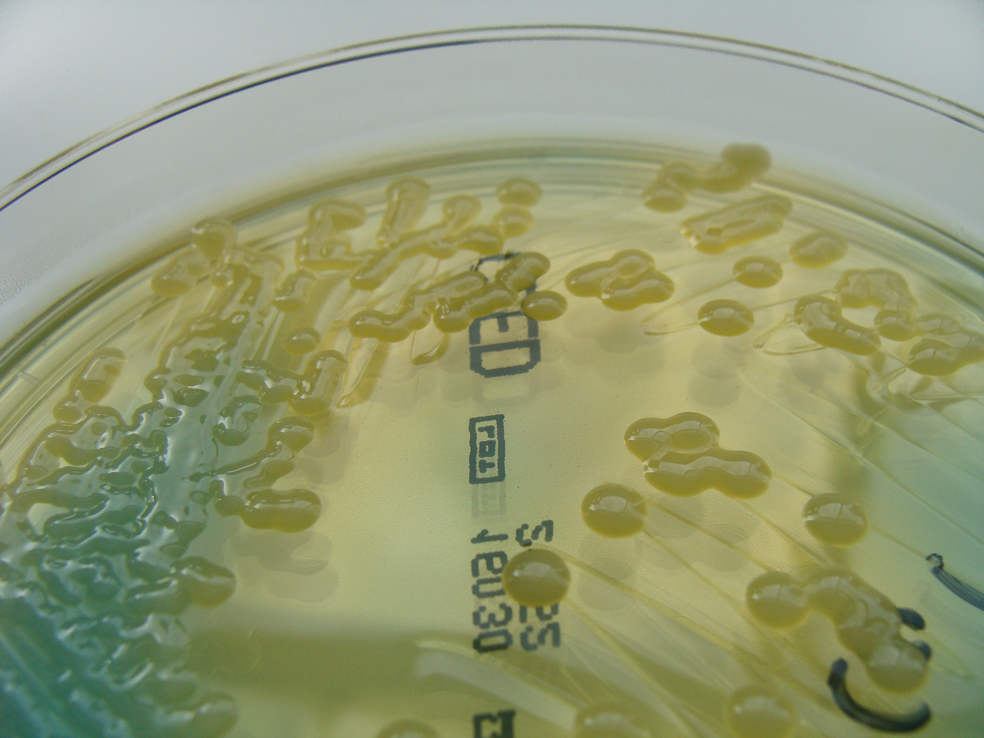 By Nathan Reading from Halesowen, UK (Klebsiella pneumoniae on C.L.E.D. Agar - detail) [CC BY 2.0 (http://creativecommons.org/licenses/by/2.0)], via Wikimedia Commons