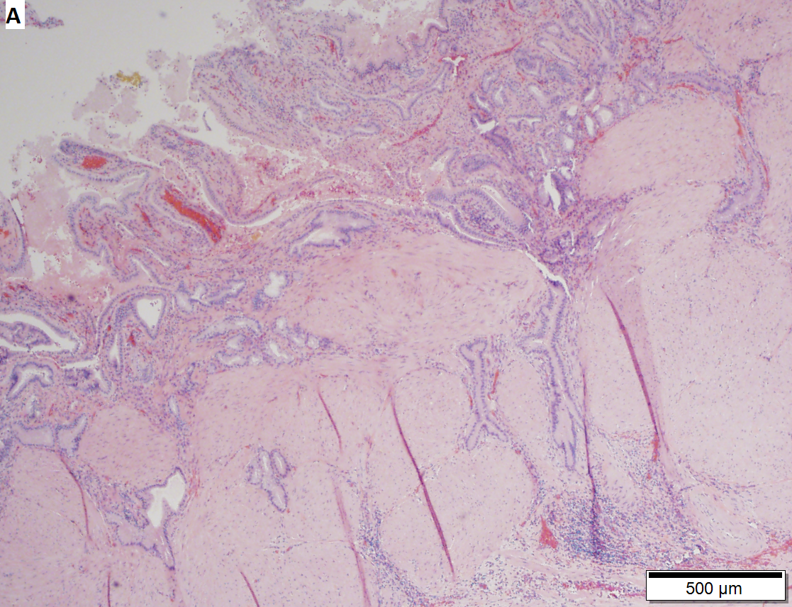 Extensive Rokitansky-Aschoff sinuses in a 64 year ood woman