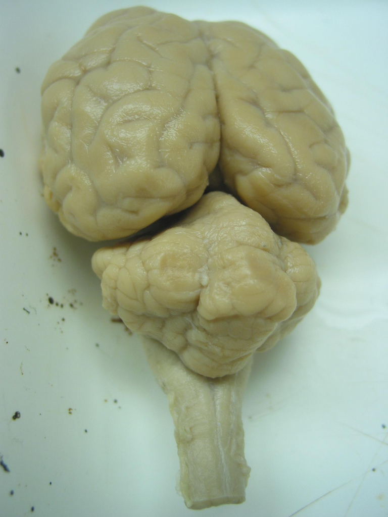 File:Sheep brain.jpg - Wikimedia Commons