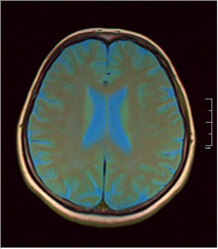 Brain MRI 0213 07.jpg