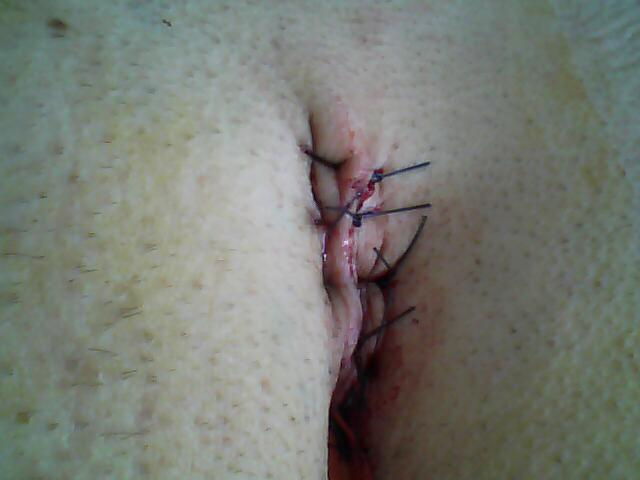 Anus Cyst http://www.facepunch.com/threads/968561-Pilonidal-Cyst-or-The-hole-that-is-above-my-anus./page4