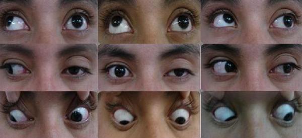 炎症 特発 性 眼窩