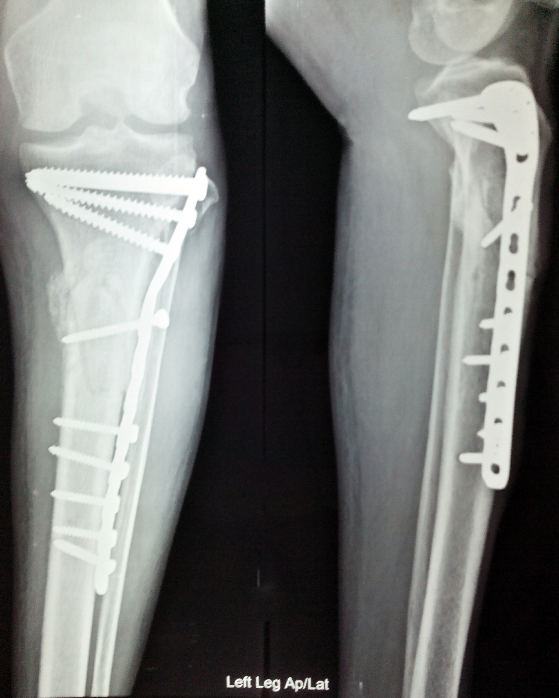 Filex Ray Internal Fixation Leg Fractureg Wikimedia Commons