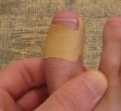 Ingrown nail - treatment by band-aid Česky: Za...