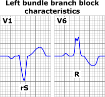 Left bundle branch block ECG characteristics.png