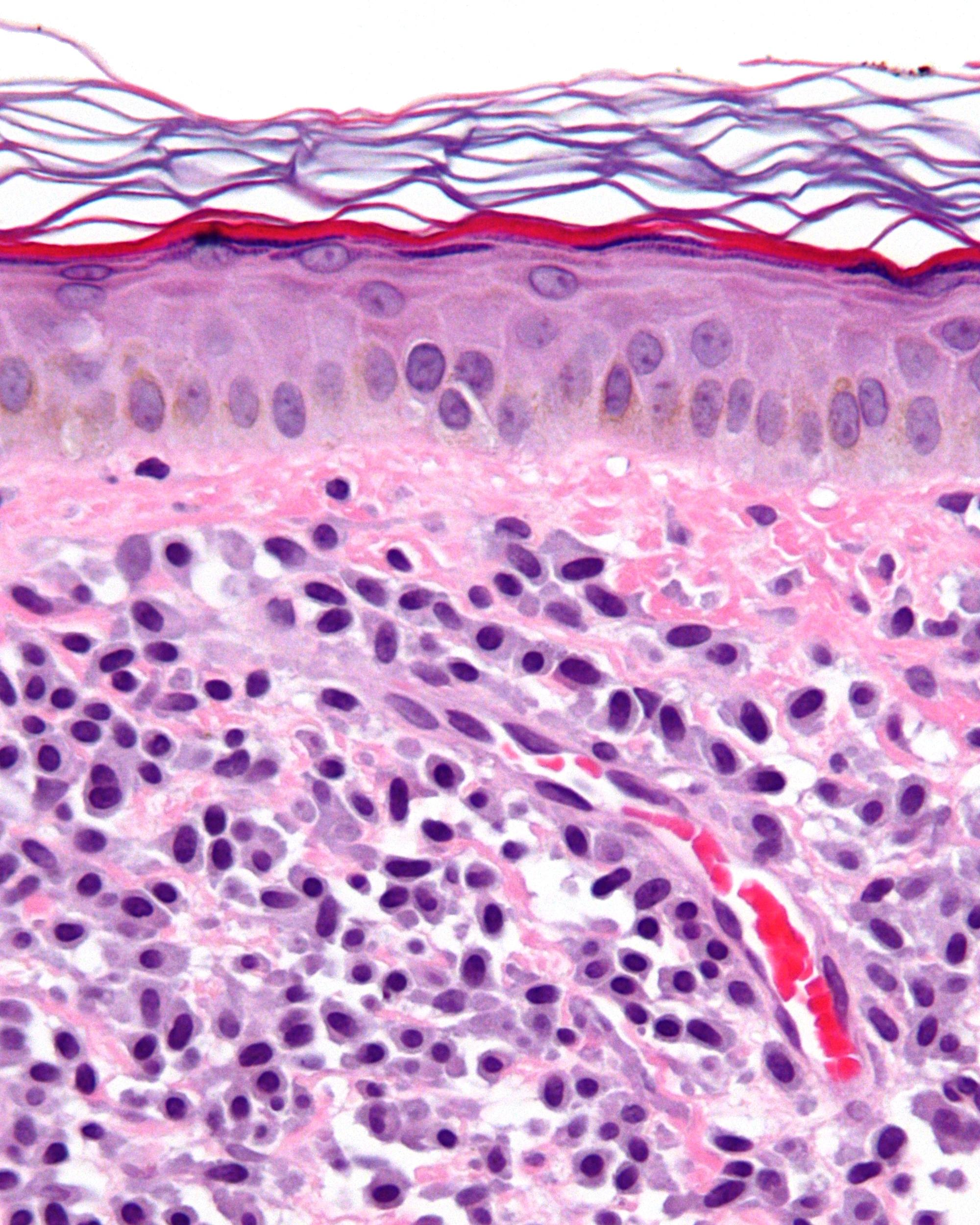 Mastocytosis - Wikipedia