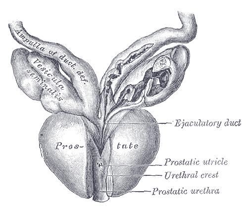 imágenes de quistes de próstata