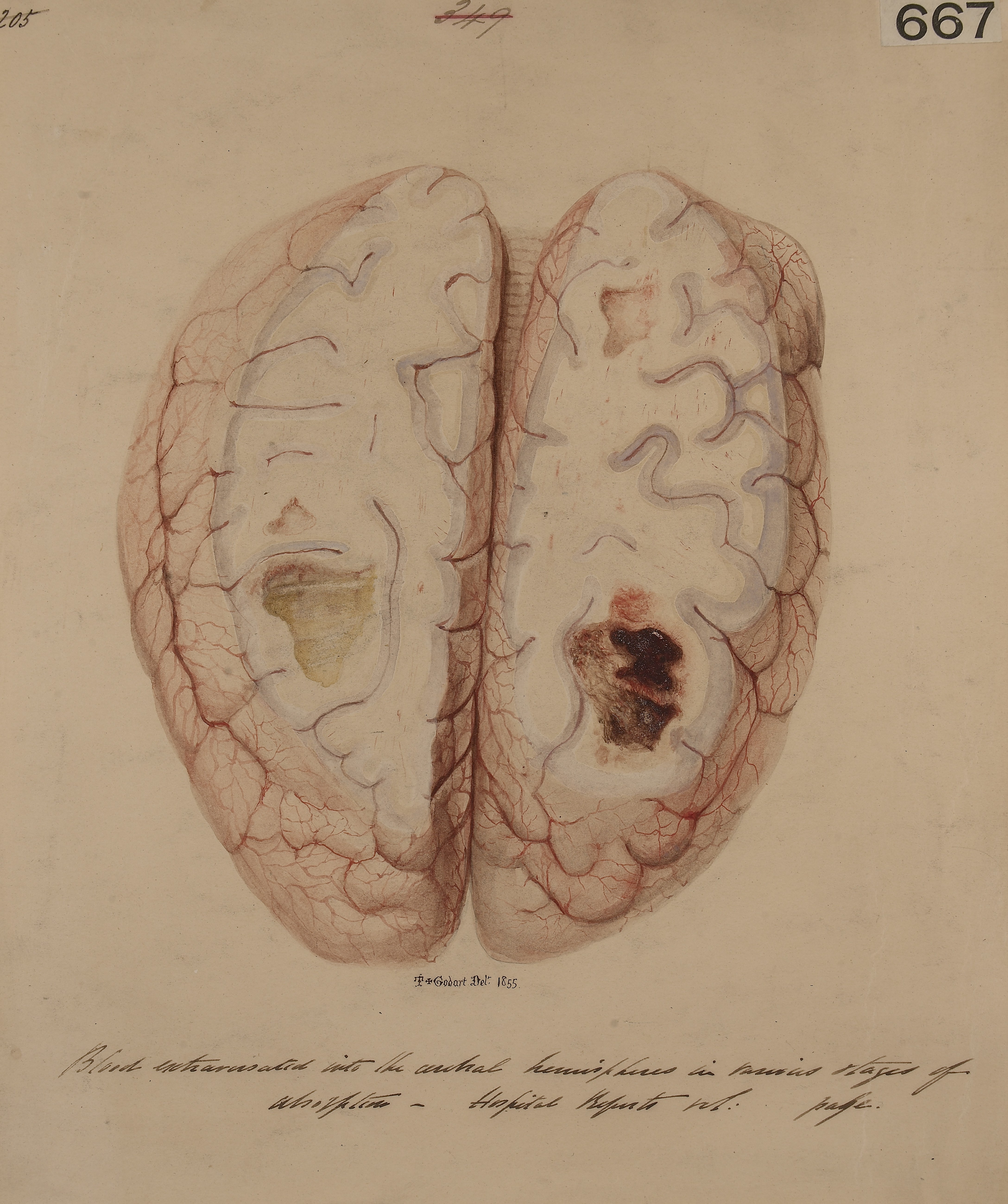 File:Brain with blood extravasated into the cerebral hemispheres ...