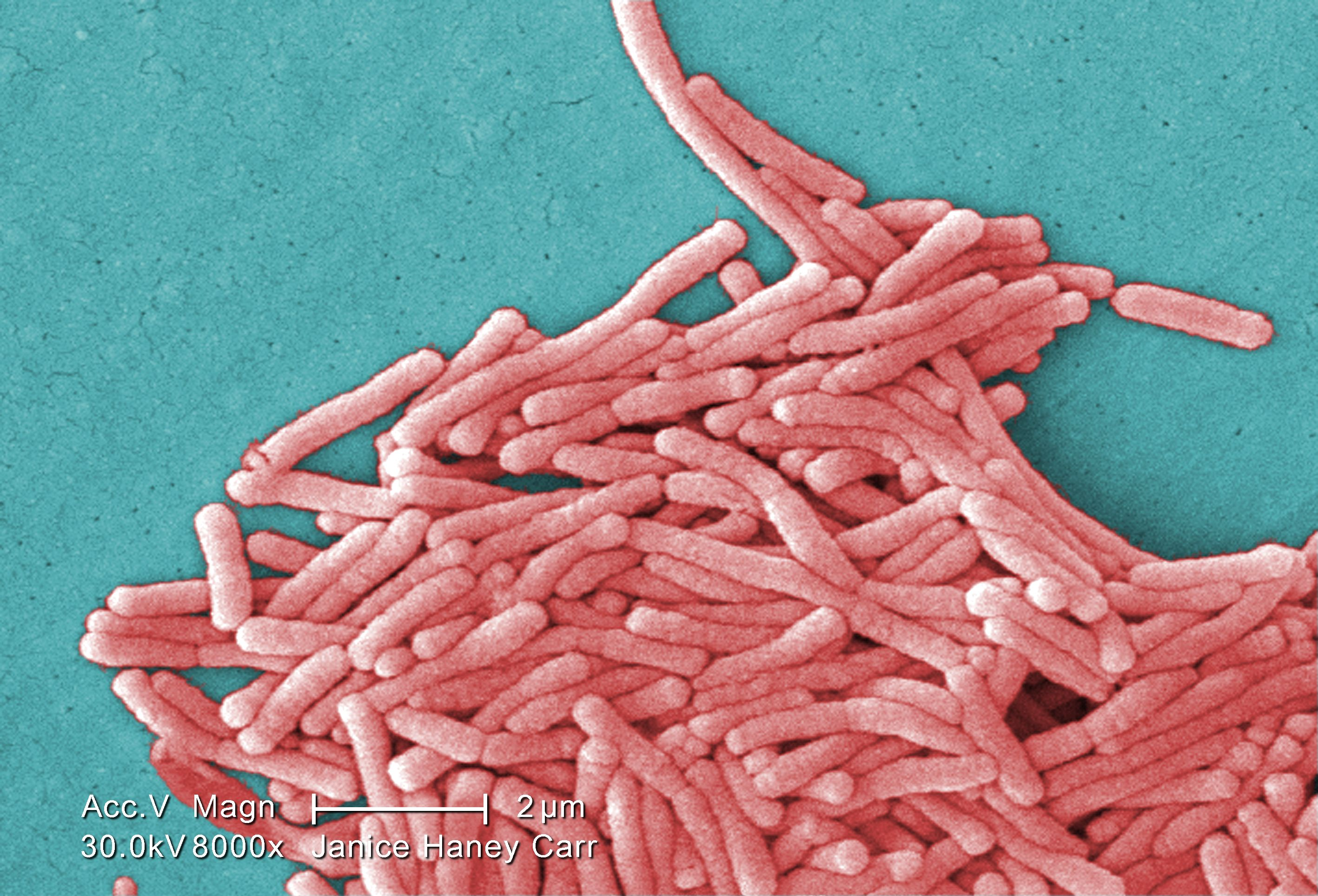 Why Are People Still Dying from Legionnaires' Disease? - Motherboard