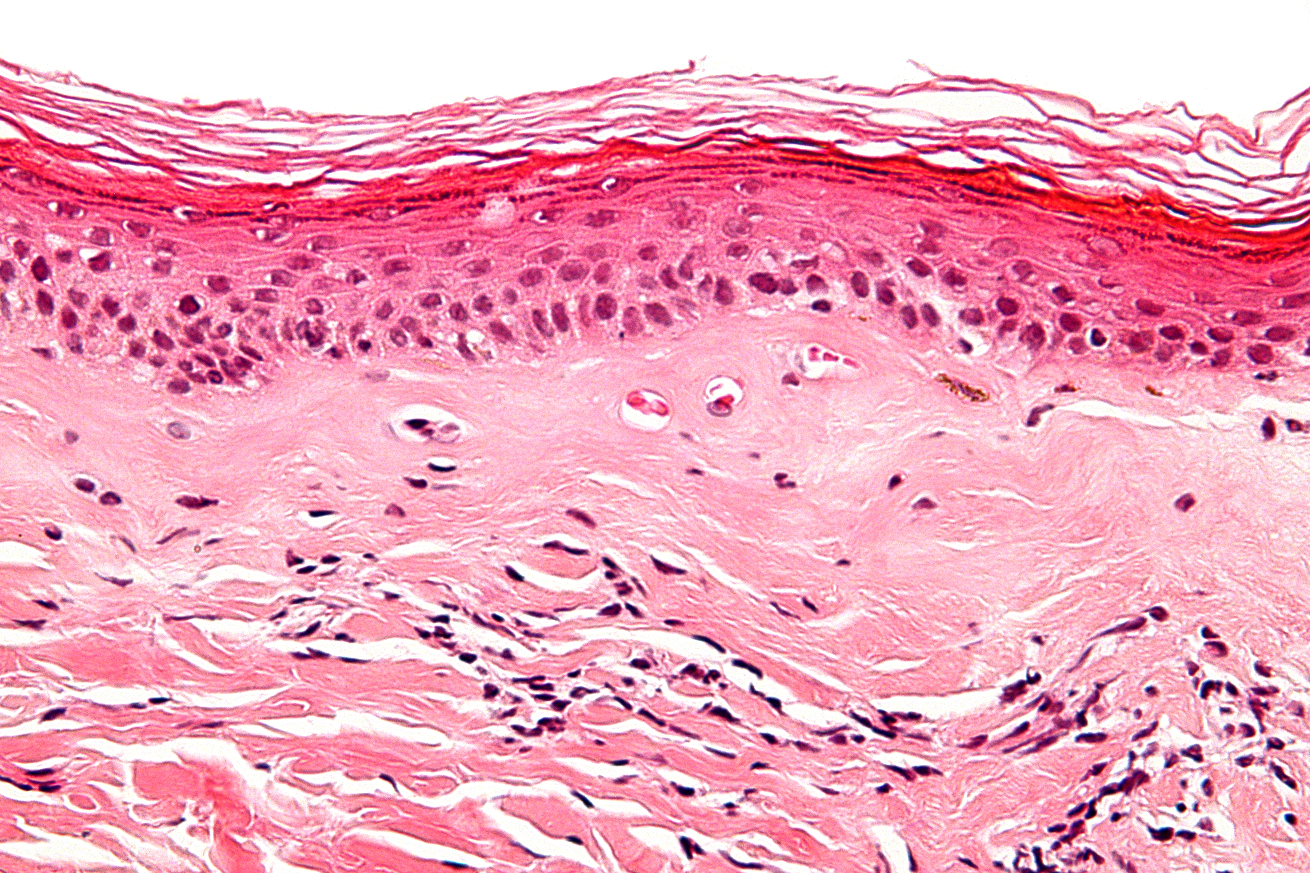 STACIE: Penis multiple sclerosis