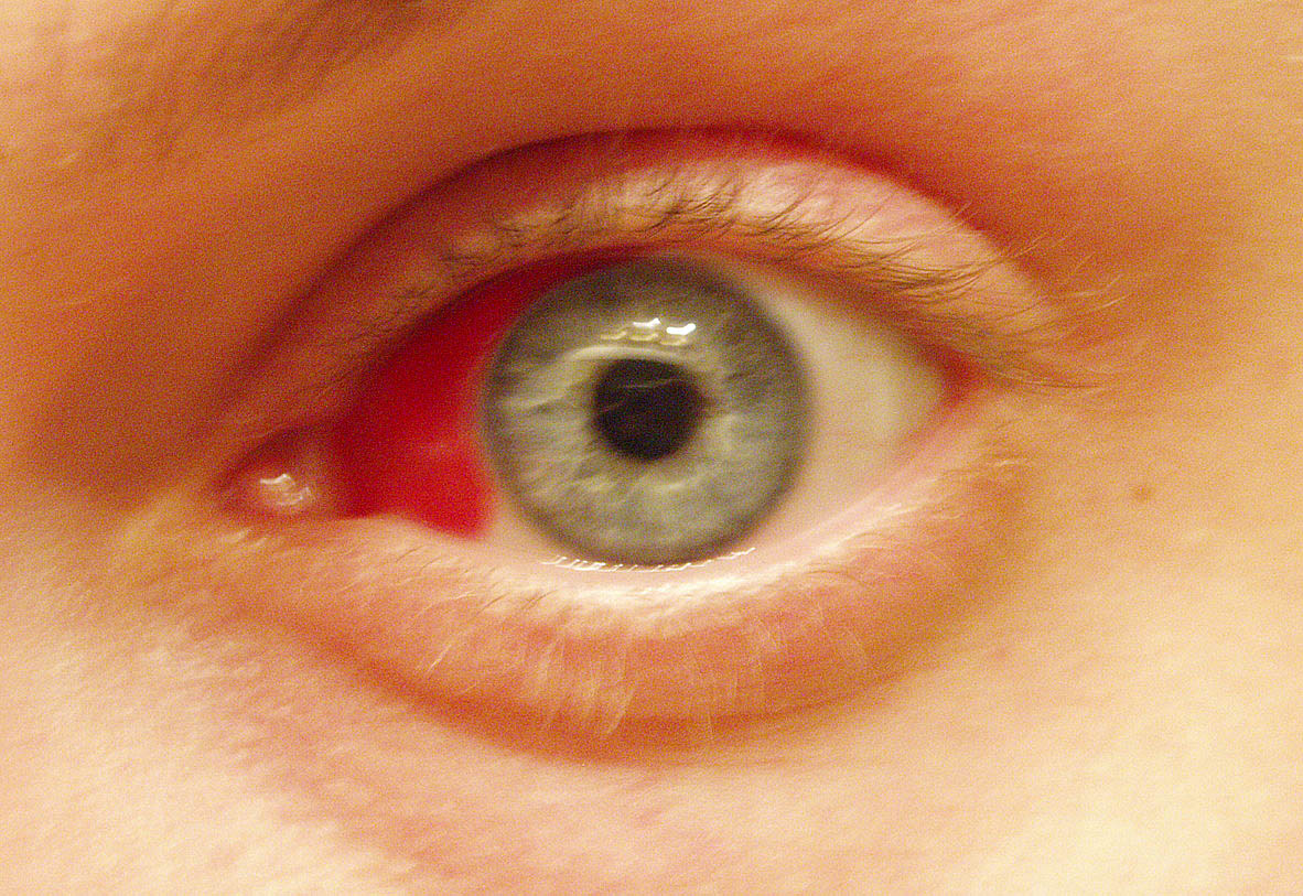 Subconjunctival hemorrhage causing red coloration as result of ruptured blood vessel in the eye